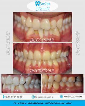 اصلاح بی نظمی شدید دندان ها