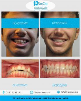 اصلاح نامرتبی  و بیرون زندگی دندان ها