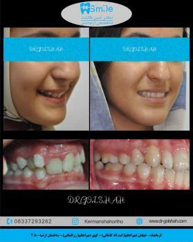 ارتودنسی ثابت دو فک بدون کشیدن دندان
