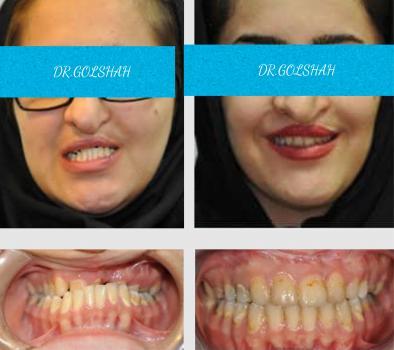 ارتودنسی ثابت و جراحی فک و بینی